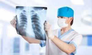 Симптомы и лечение метастатического плеврита