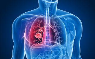 Симптомы и лечение правосторонней пневмонии