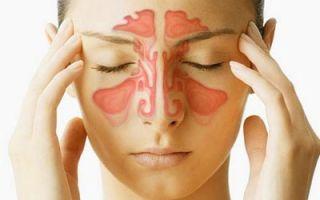 Может ли появляться кашель от синусита