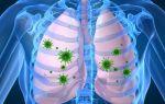 Симптомы и лечение микоплазменной пневмонии