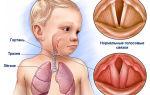 Какие бывают симптомы ларингита у детей и взрослых