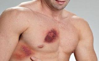 Симптомы и лечение посттравматической пневмонии