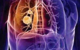 Симптомы и лечение хронического обструктивного бронхита