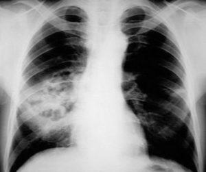 Бессимптомная пневмония