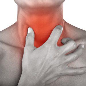 Причины и лечение жжения в горле
