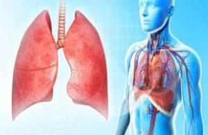 Симптоматика казеозной пневмонии