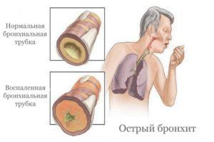 Лечение острого бронхита