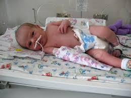 Как лечится врожденная пневмония у новорожденных