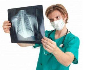 Симптомы и лечение пневмоцистной пневмонии