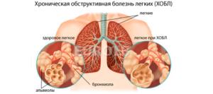 диагностика хронического обструктивного бронхита
