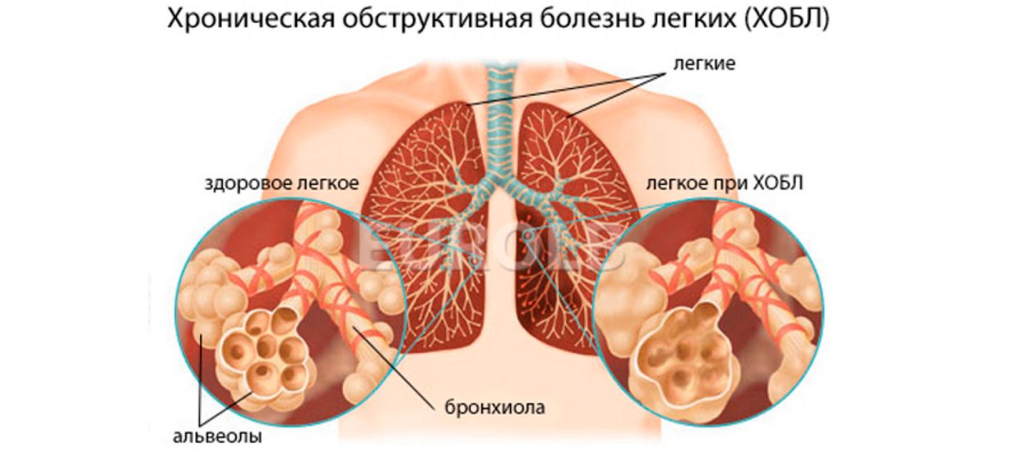 Тошнота и понос у ребенка без температуры лечение