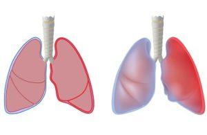 Заразен ли туберкулезный плеврит легких и как лечится