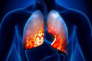 Разновидности атипичной пневмонии