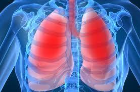 Симптомы и лечение аспирационной пневмонии