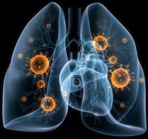 Симптомы и лечение бактериальной пневмонии