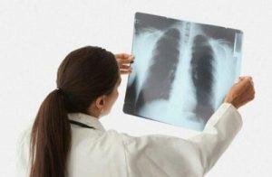 Симптомы и лечение казеозной пневмонии