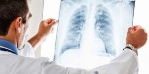 лечение посттравматической пневмонии