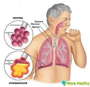 Симптоматика пневмонии