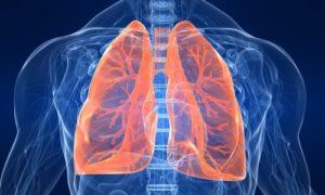 Симптомы и лечение саркоидоза легких