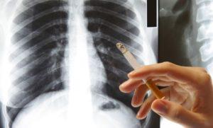 Как избавиться от кашля от курения