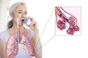 Особенности астмы у взрослых