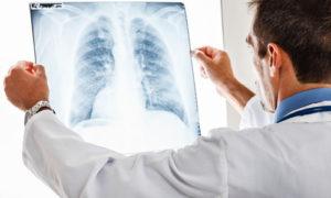 Пневмония правосторонняя