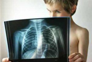 лечение левосторонней пневмонии