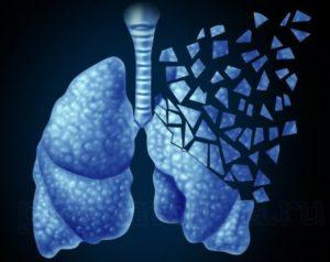 Параканкрозная пневмония