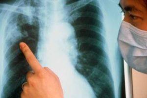 Симптомы и лечение закрытой формы туберкулеза