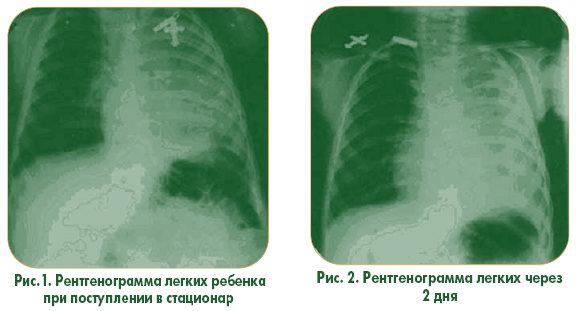Как лечить пневмонию в домашних условиях ответы